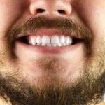 10 Ways to Improve Oral Health