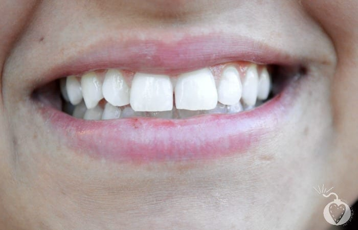 How Can I Actually Have Whiter Teeth?