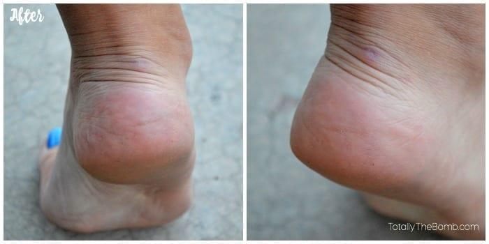 cracked heel solution