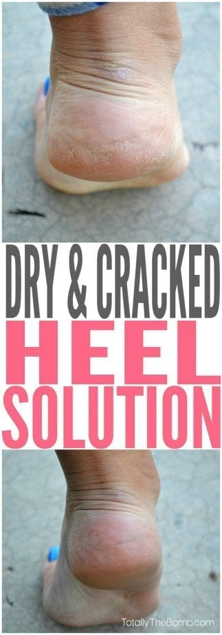 check out this super cool cracked heel solution that actually works!