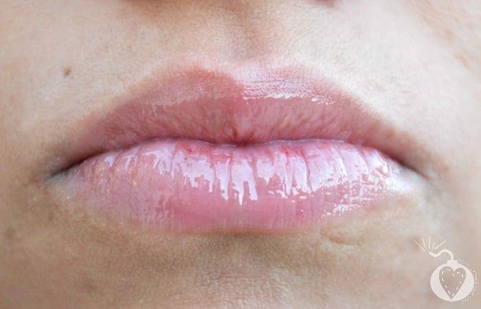 How to Get Fuller Lips Without Collagen Injections