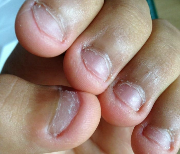 biting your nails is a bad habit, and could be a sign of anxiety or OCD