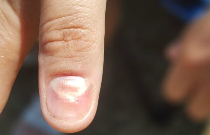 10 Things Your Fingernails Are Trying To Tell You