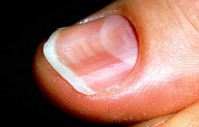 curved fingernails could be a sign of serious disease