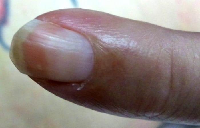aging nails are often pinker at the top of the nail and paler towards the cuticle