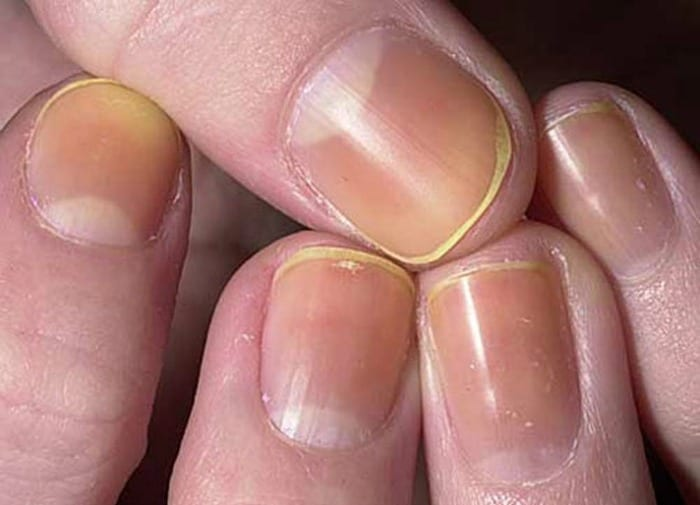 yellow discolored nails are common and could be from nail polish stains or smoking