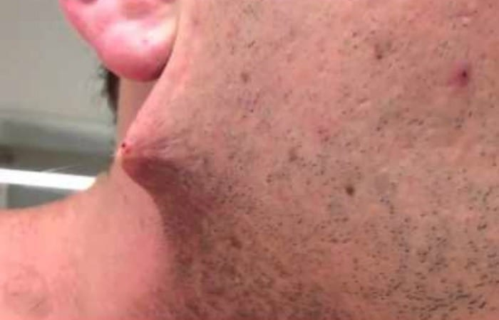Man Shaves His Beard, Finds This…